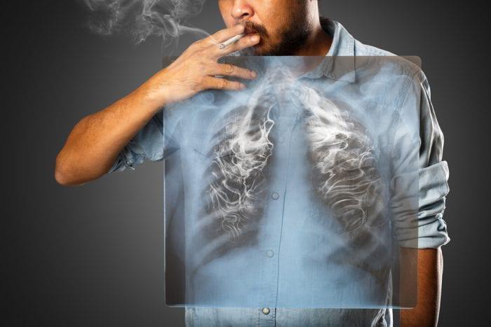 smoking lung damage